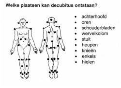 Decubitus